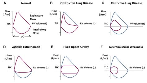 Flow Volume Loop Pulmonary Function Tests Pft Lesson 2 Spirometry Youtube Flow Volume Loops Pft Interpretation Template