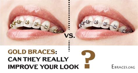 how do you make the color gold will gold braces really make you look better