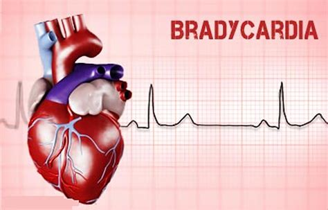 Bradycardia Image bradycardia sinus bradycardia causes symptoms