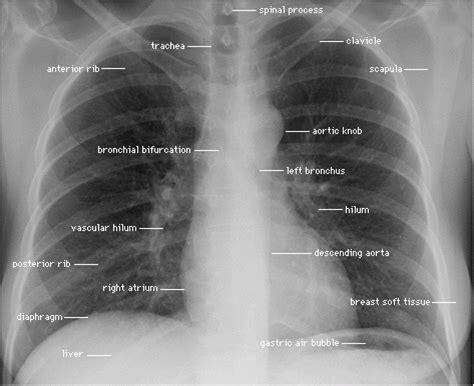 rx horizonte imagenes medicas y odontologicas c 243 mo leer una radiograf 237 a de t 243 rax ratser com