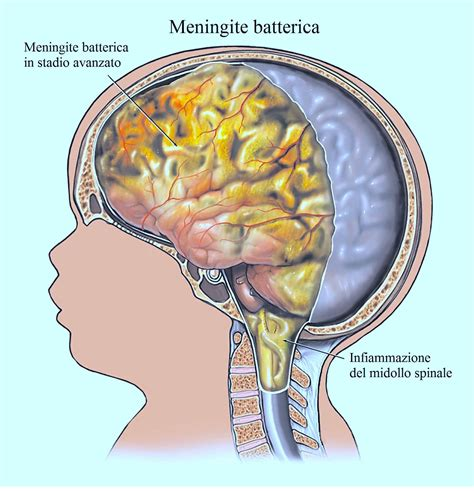 dolore testa sinistra dolore alla nuca destra o sinistra e rimedi