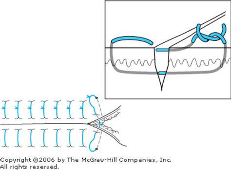 vertical interrupted mattress suture iv 16 med school