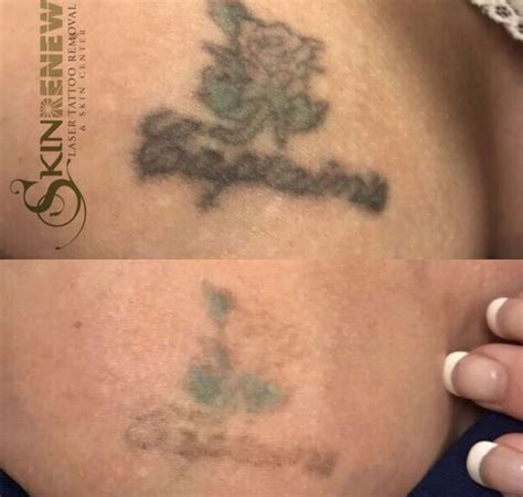 finger tattoo removal before and after before and after laser tattoo removal photos