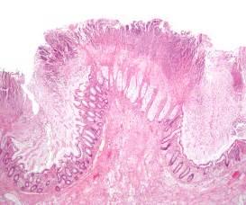 stool c difficile toxin causes symptoms treatment