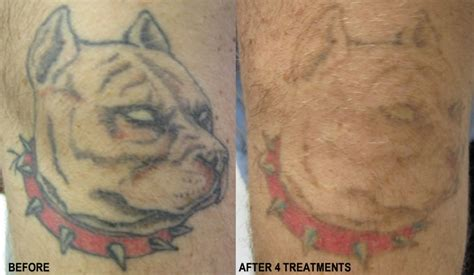 pensacola tattoo removal 18 successful laser removal bodybarn