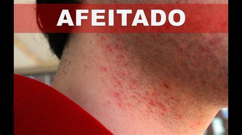 en la piel de 8499925197 como deshacerse o disminuir la irritaci 243 n en la piel al afeitarse los vellos youtube
