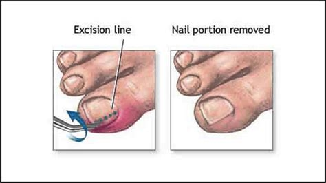 13 Tips On How To Treat In Grown Hair by Ingrown Toenail Treatment Podiatrist In Palm Harbor And