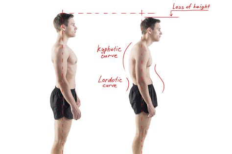 posture and pain gisurgeryinfo common posture problems and how to fix them orthopaedic