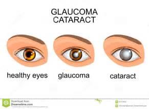 ocular blindness ojos sanos glaucoma cataratas ilustraci 243 n vector