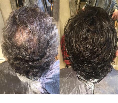 hair weaves for balding men hair extensions extology salon