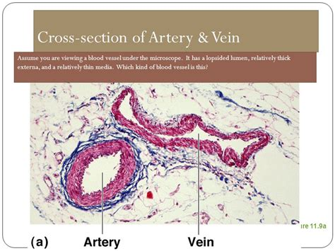 cross sectional views of an artery and of a vein blood vessels ppt video online download