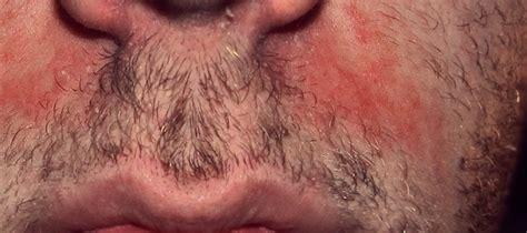 dermatitis en el cuero cabelludo cuero cabelludo cuidados necesarios enfermedades y