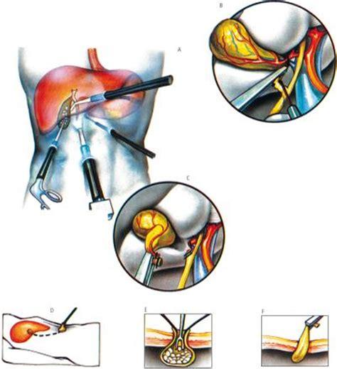 colica biliare alimentazione ecco come affrontare la colica biliare e i calcoli alla