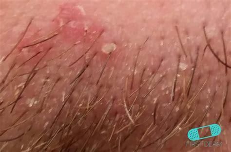 dermatitis en el cuero cabelludo online dermatology costra l 225 ctea dermatitis seborreica