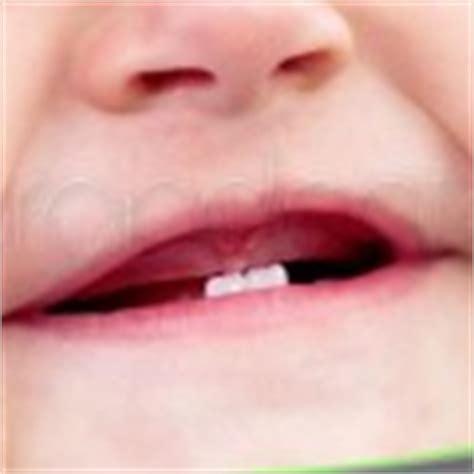imagenes dientes temporales erupci 243 n dental