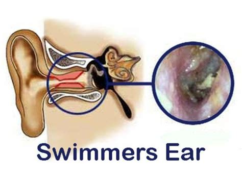 swimmers ear treatment home remedy causes symptoms
