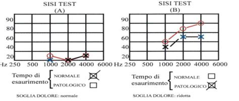 test di metz audiometria tonale sopraliminare