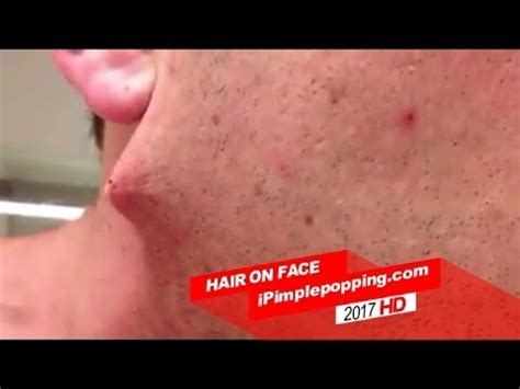popping zit on the back pimple popping at home