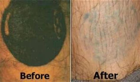 trichloroacetic acid tattoo removal removal march 2013