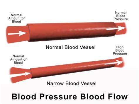 blood pressure swings causes high blood pressure during pregnancy preeclsia