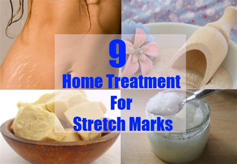 home treatment for stretch marks how to treat stretch