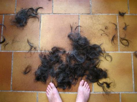 dht and 5ar hair loss in women 5ar cause of dht newhairstylesformen2014 com
