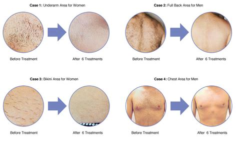 hair removal for reviews laser hair removal reviews and results at therapie clinic