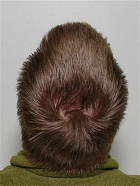 layer on the crown of gead perte de cheveux avoir une alop 233 cie n est pas une