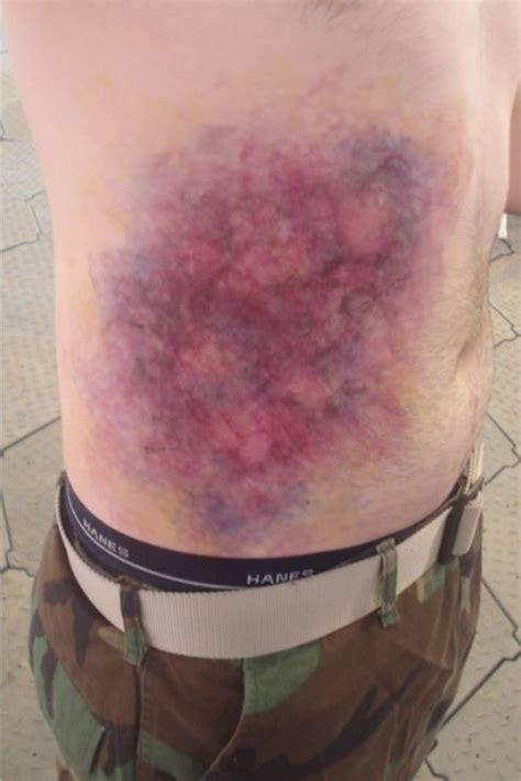 c section bruising image gallery abdominal bruising