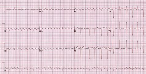 Stripie 2 In 1 atrial flutter in the fast library