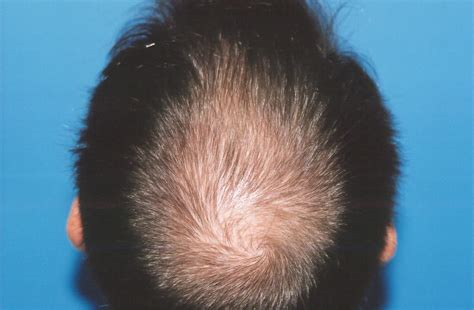 hair pieces for thinning hair crown area thinning hair in crown area great hairline thin top and