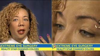 changing eye color surgery how tiny s eye color changing surgery actually works