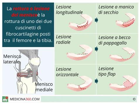 lesione corno posteriore menisco interno lesione e rottura menisco sintomi terapia ed operazione