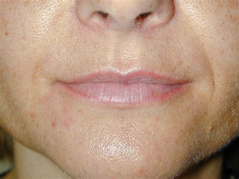 lip liner tattoo toronto permanent lipstick makeup for women in toronto toronto