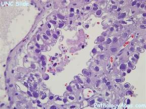 Clear Cell Endometrial Cancer Pathology Outlines by Endometrial Clear Cell Carcinoma Pathology