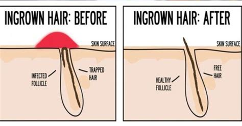 ingrown hair diagram 14 effective home remedies for ingrown hair