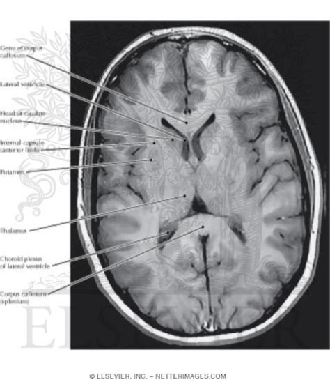 axial section cerebral cortex and basal ganglia axial section
