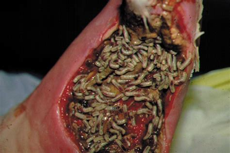 how to clean an infected wound on a maggot therapy an alternative for wound infection the lancet