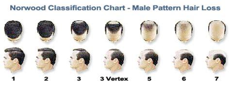 hair loss not male pattern baldness male pattern baldness bauman medical group