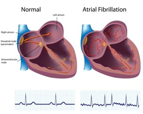atrial fibrillation diagram familial atrial fibrillation genetics home reference