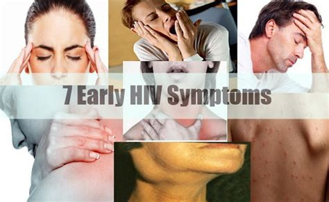 early hiv aids symptoms ehow beware if you see these 7 symptoms go for an hiv test