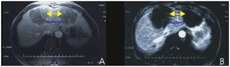 Detox Mri Contrast by Hifu Treatment Liver Cancer Delhi Hifu Cancer Treatment