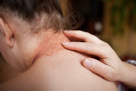 light therapy side effects psoriasis light therapy xtrac effectively treats lesions