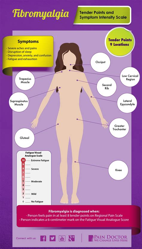 fibromyalgia tender points diagram pin tender points in fibromyalgia on