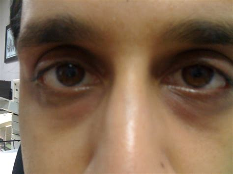 black under eye make up tips in the dark circles causes and home