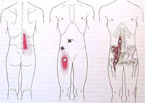 iliopsoas diagram the psoas anatomy