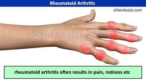 arthritis symptoms image gallery inflammatory arthritis