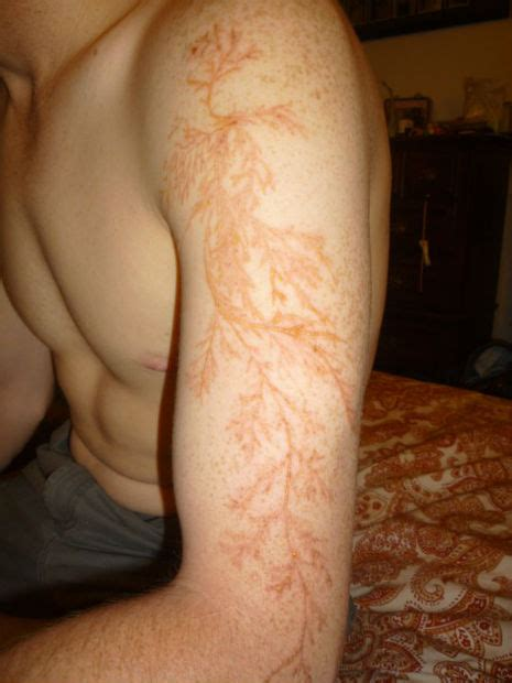 lightning strike tattoo anorak the lichtenberg figure is nature s scarifier