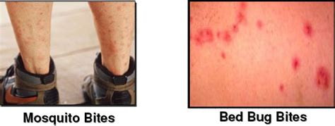 mosquito vs bed bug bites bed bug bite marks body pictures treatment free brochure