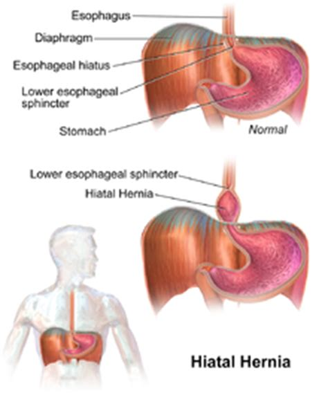 diagram of hiatal hernia hiatal hernia